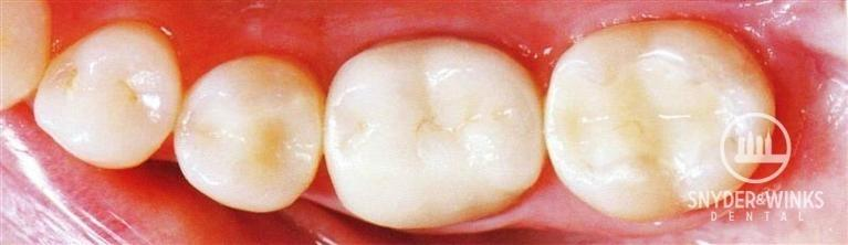 Metal-Fillings-After-Image